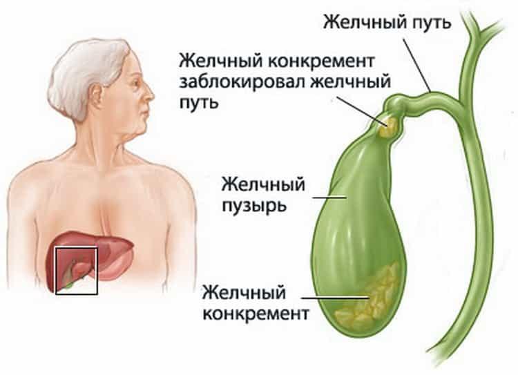 сало польза и вред для организма женщины