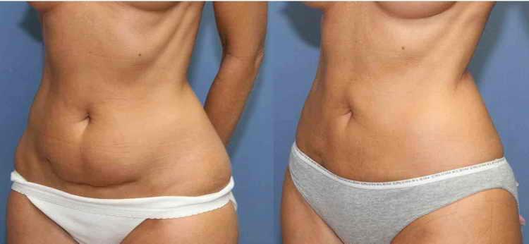 липолитики для похудения отзывы фото