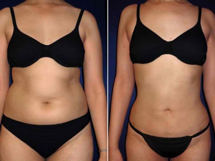 липолитики для похудения инъекции отзывы