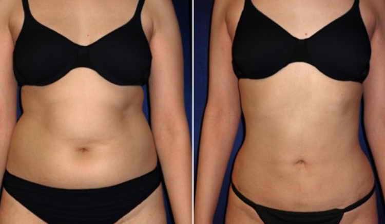массаж живота для похудения отзывы