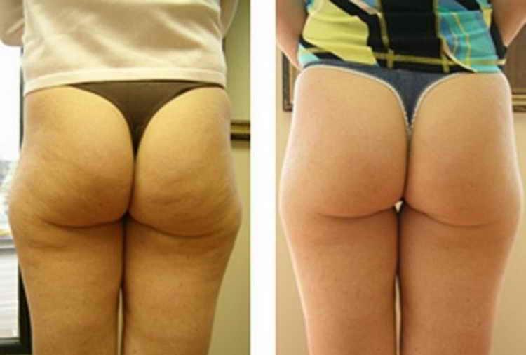 обертывание для похудения отзывы с фото до и после