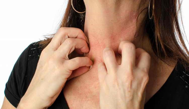 адапален от морщин отзывы косметологов