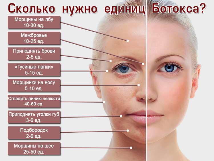 ботокс от морщин вокруг глаз