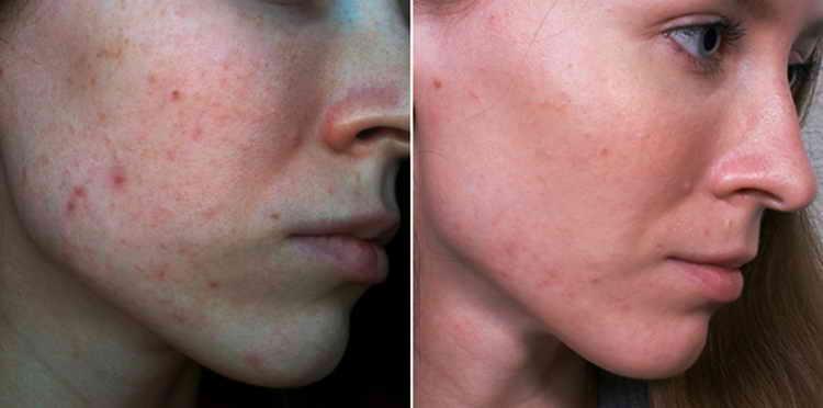 дегтярное мыло от прыщей отзывы с фото до и после