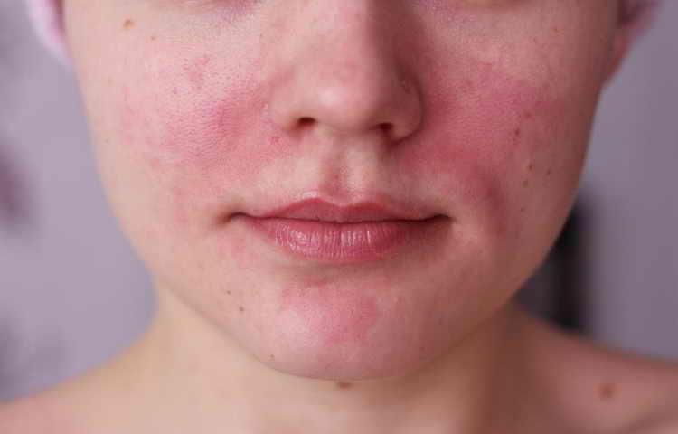 как определить тип кожи лица сухая