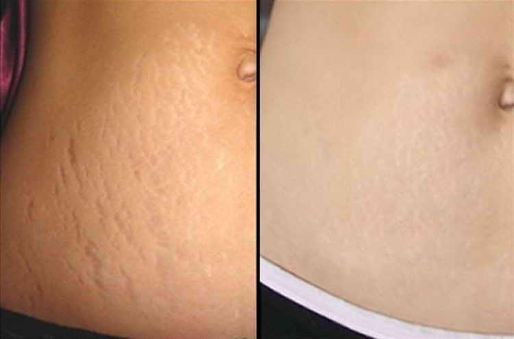 как подтянут кожу после похудения отзывы с фото