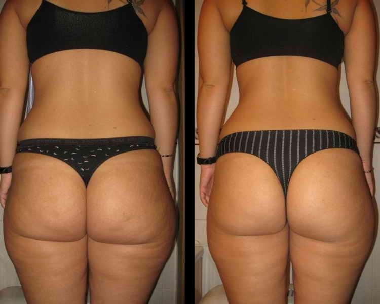 как подтянут кожу после похудения отзывы с фото до и после