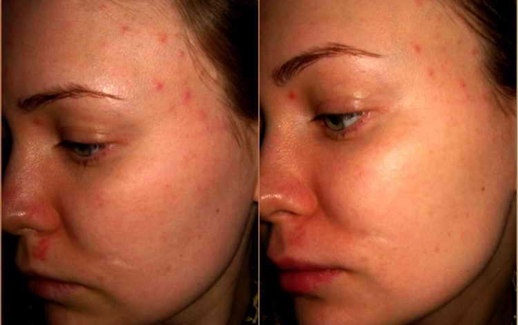 как убрать следы от прыщей на лице отзывы с фото до и после