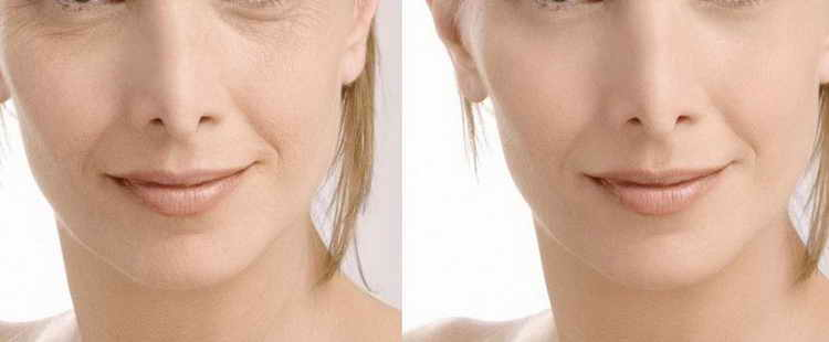 куриозин гель от морщин применение отзывы с фото до и после