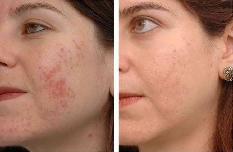 лечение акне отзывы с фото до и после