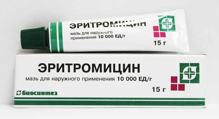 акне вульгарис лечение