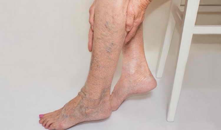 как делать лимфодренажный массаж ног