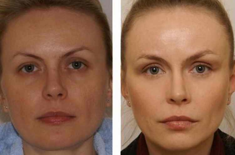 миостимуляция лица видео