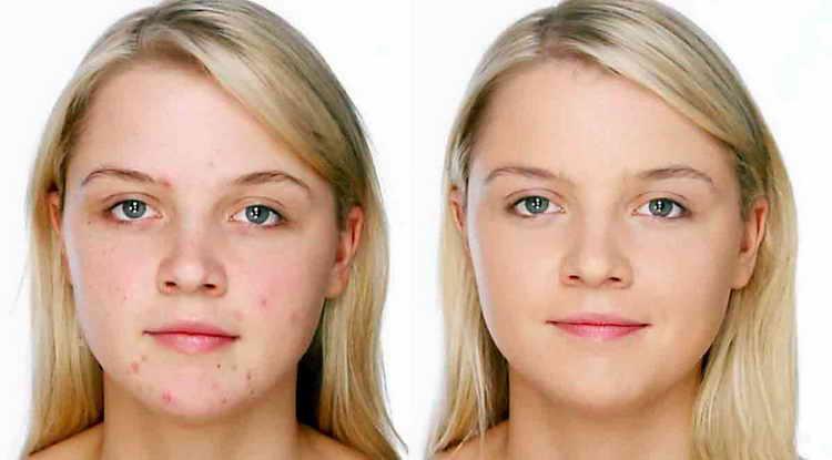 полисорб от прыщей отзывы с фото до и после