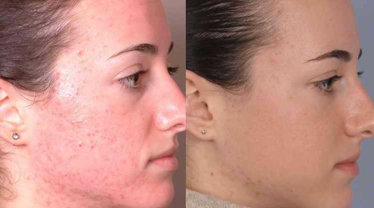 прыщи на шее у женщин отзывы с фото до и после