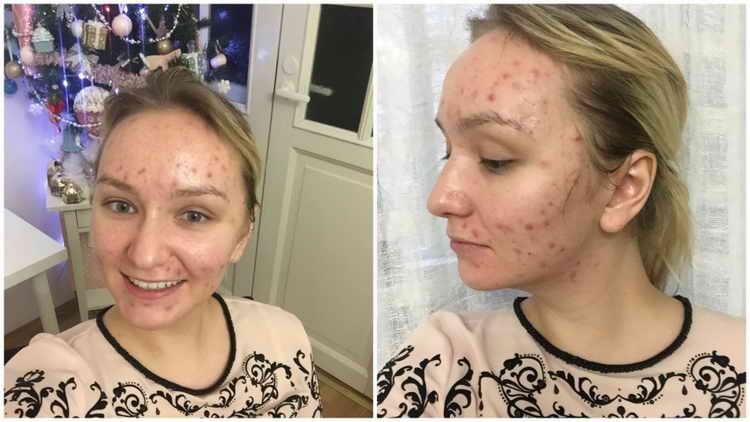 прыщи на висках у женщин отзывы с фото до и после