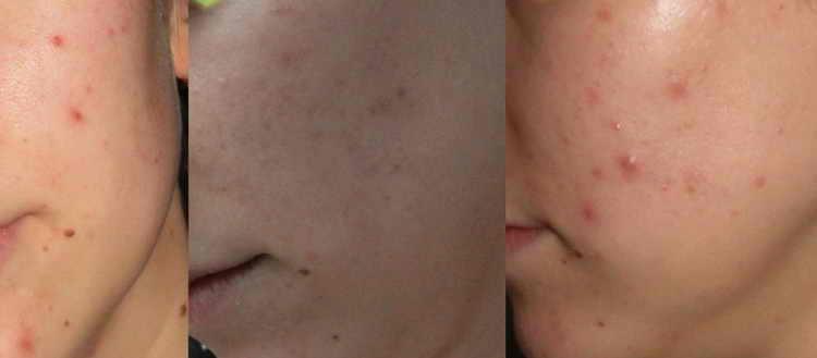 ретиноевая мазь от прыщей отзывы с фото до и после