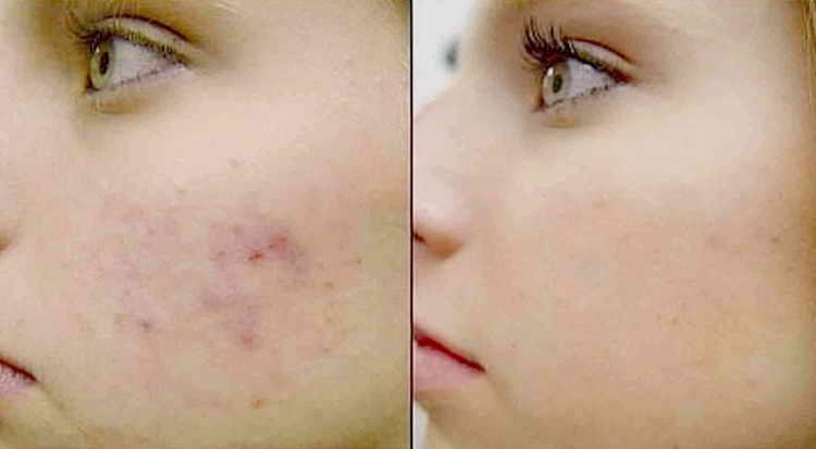 салициловая кислота от прыщей отзывы с фото до и после