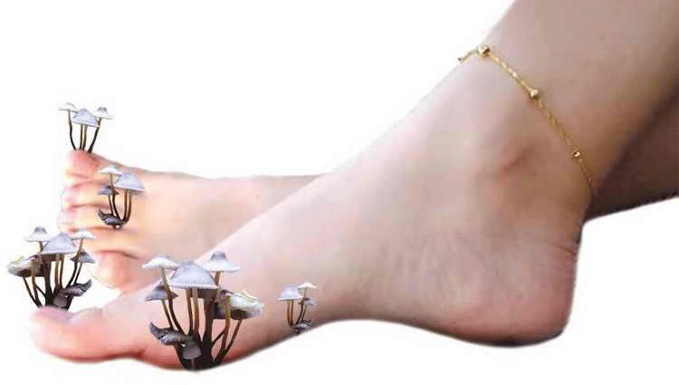шелушится кожа на ногах причины