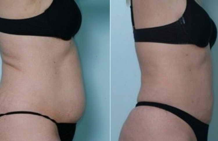 вакуумно роликовый массаж отзывы с фото до и после
