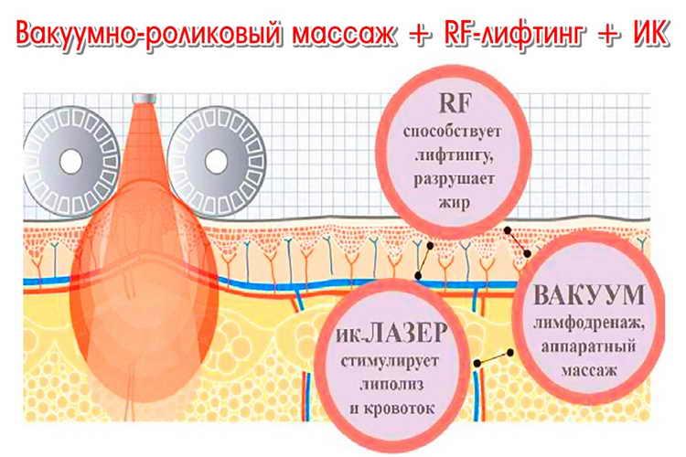 вакуумно роликовый массаж тела