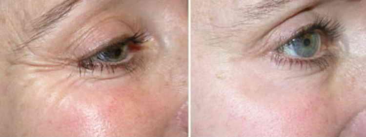 масло жожоба от морщин вокруг глаз отзывы
