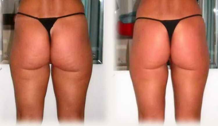 антицеллюлитный массаж отзывы с фото до и после