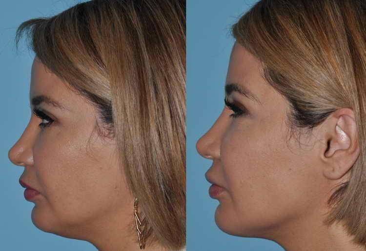 липосакция шеи и подбородка отзывы реальные