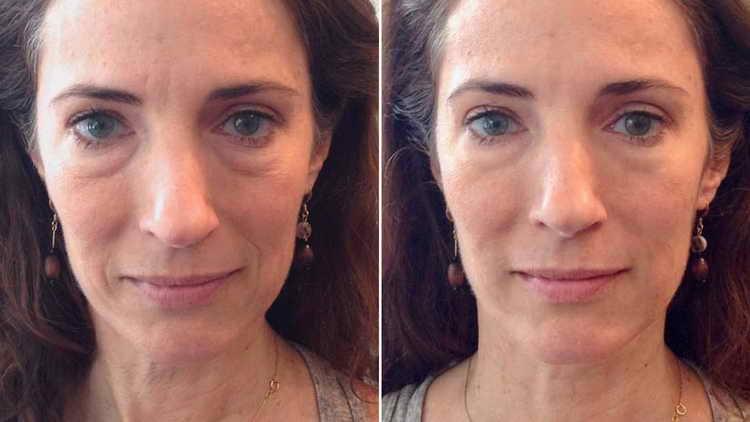 медовый массаж лица отзывы фото до и после