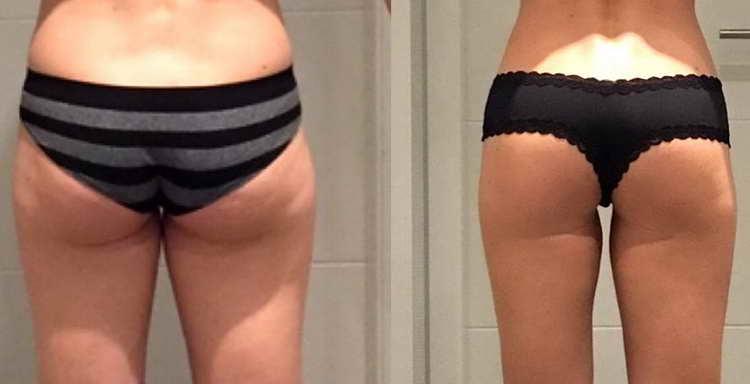 приседания для похудения отзывы с фото до и после
