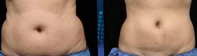 Похудение с помощью вакуума в животе